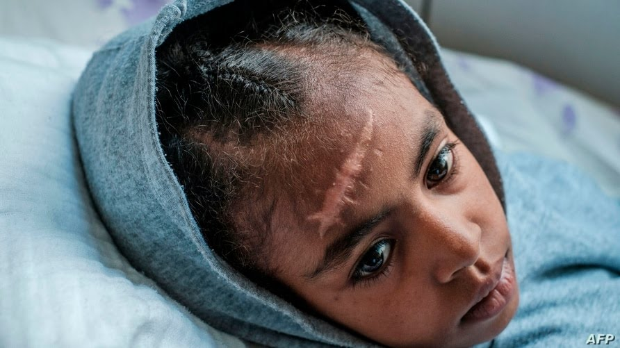 Arsema Berha, 9-years-old, rests on her bed at the Ayder Referral Hospital in the Tigray capital Mekele on February 25, 2021,…